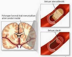 obat pembekuan darah